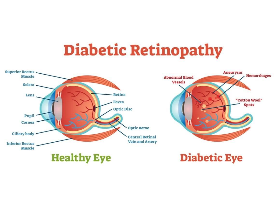 diabetic_eye